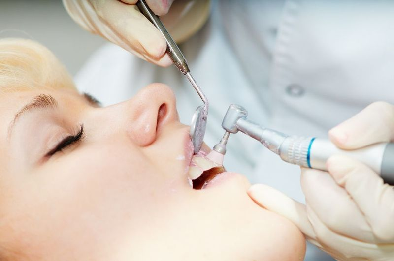 A woman undergoing a dental cleaning