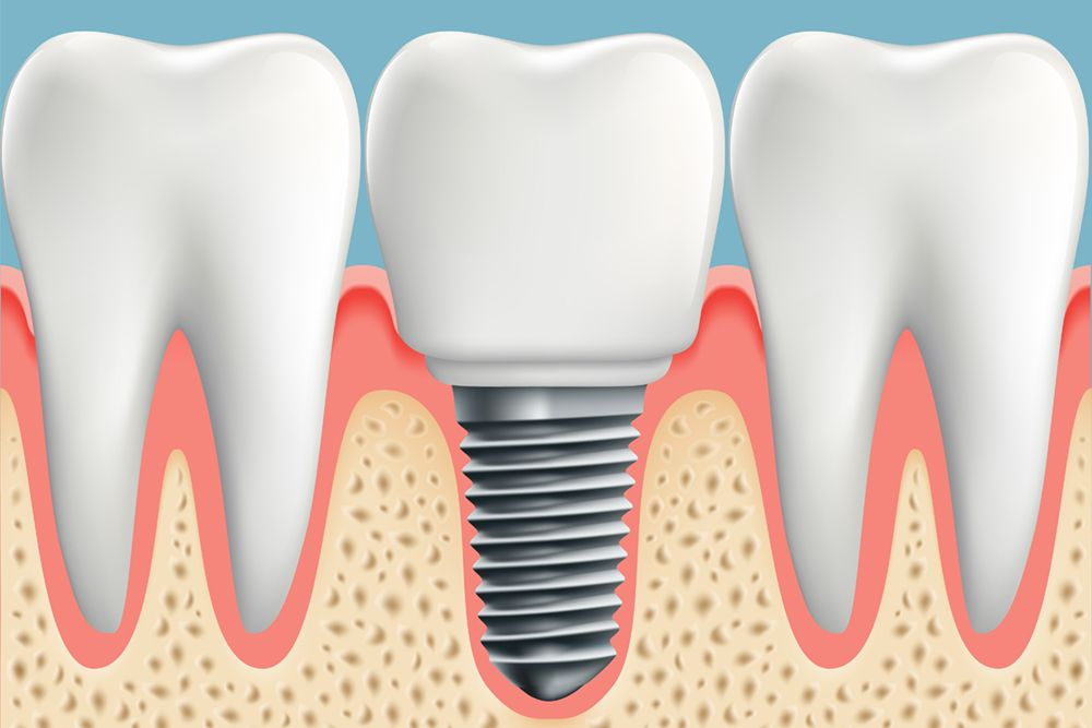 An implant-supported crown