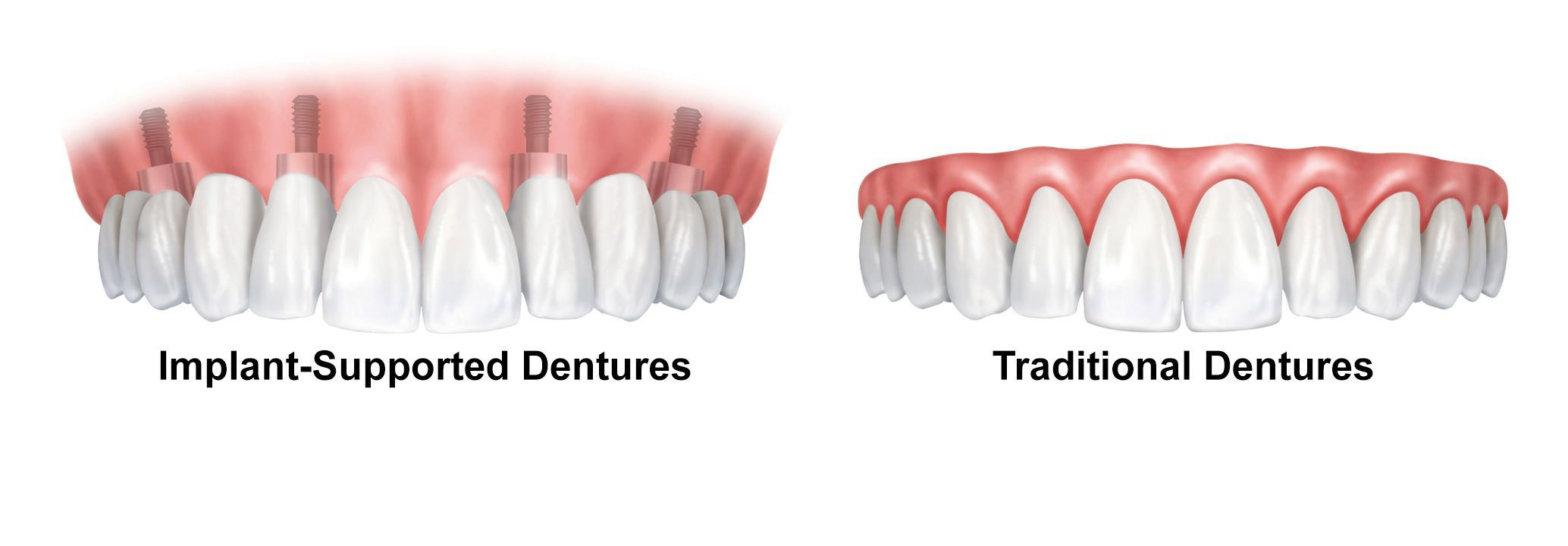 Implant-supported dentures and traditional dentures
