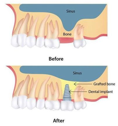 Results of a sinus lift