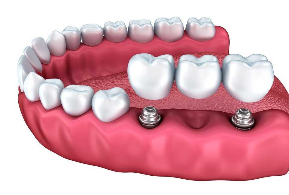 Illustration demonstrating how an implant-supported bridge fits into the gums.