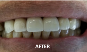 Dentist Irving TX